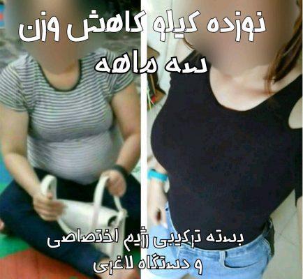 دکتر تغذیه در مشهد
